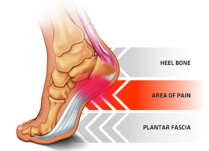 plantar fasciitis area of pain