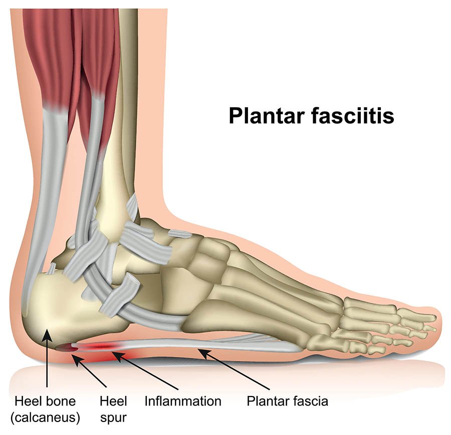 plantar fasciitis illustration