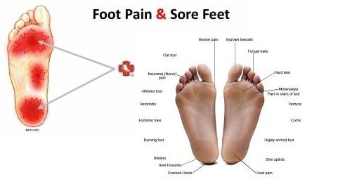 foot pain and sore feet