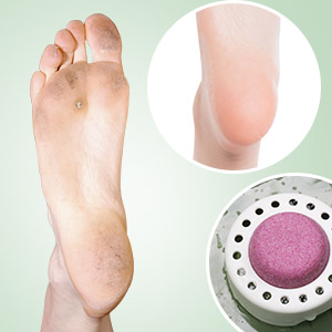 foot spa remove dead skin