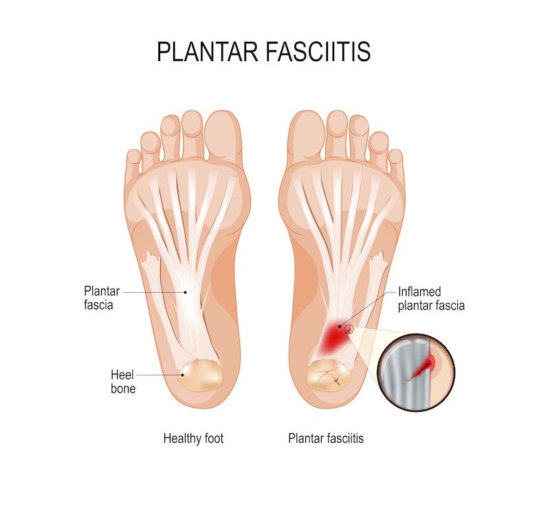 plantar fasciitis foot anatomy