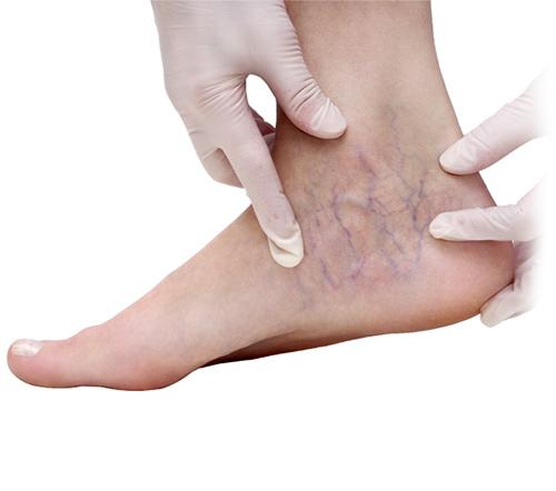 varicose veins feet